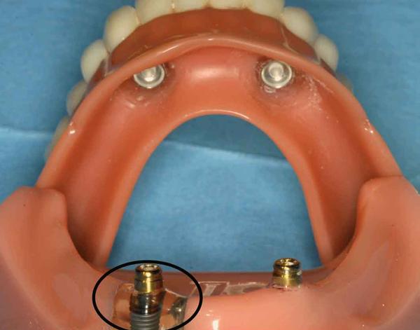 Model van kaak en gebit met implantaatschroeven