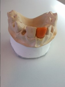 kronen-bruggen-dental-techniek-groningen-3