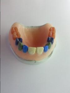 kronen-bruggen-dental-techniek-groningen-4