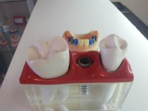 kronen-bruggen-dental-techniek-groningen-6